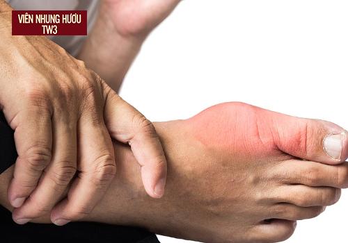 Khắc phục các vấn đề về xương khớp với nhung hươu