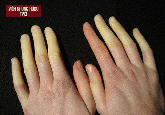 Hội chứng Raynaud khiến máu không được lưu thông gây ra hiện tượng tê cứng tay