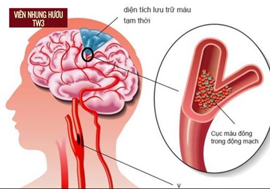 Thiếu máu não nguyên nhân chính gây hoa mắt