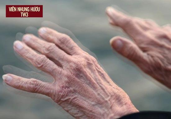 Hoa mắt chân tay run là dấu hiệu người bệnh không thể bỏ qua